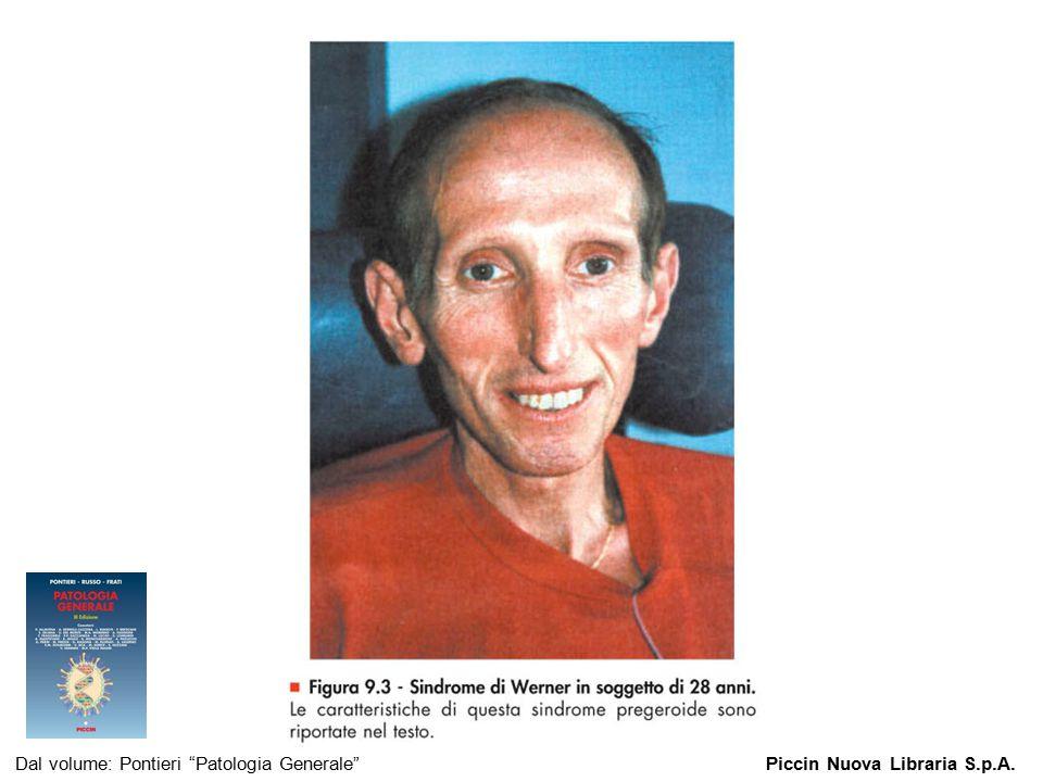 Figura 9.3 - Sindrome di Werner in soggetto di 28 anni.