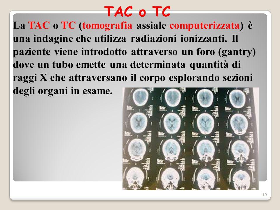 TAC o TC