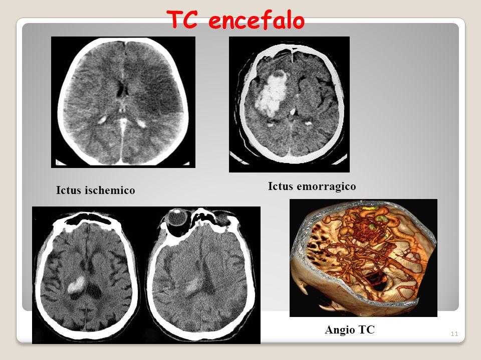 TC encefalo Ictus emorragico Ictus ischemico Angio TC