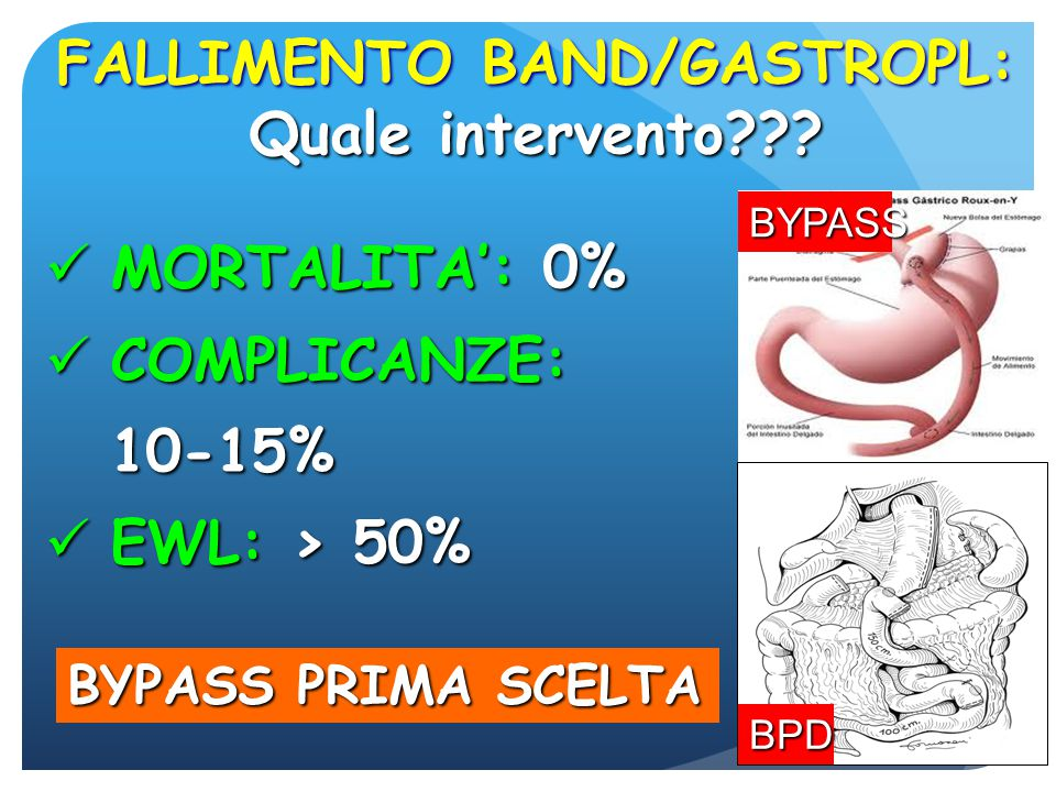 FALLIMENTO BAND/GASTROPL: