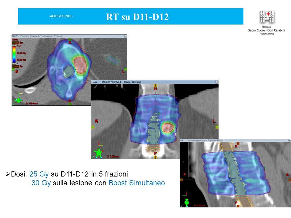 RT su D11-D12 Dosi: 25 Gy su D11-D12 in 5 frazioni