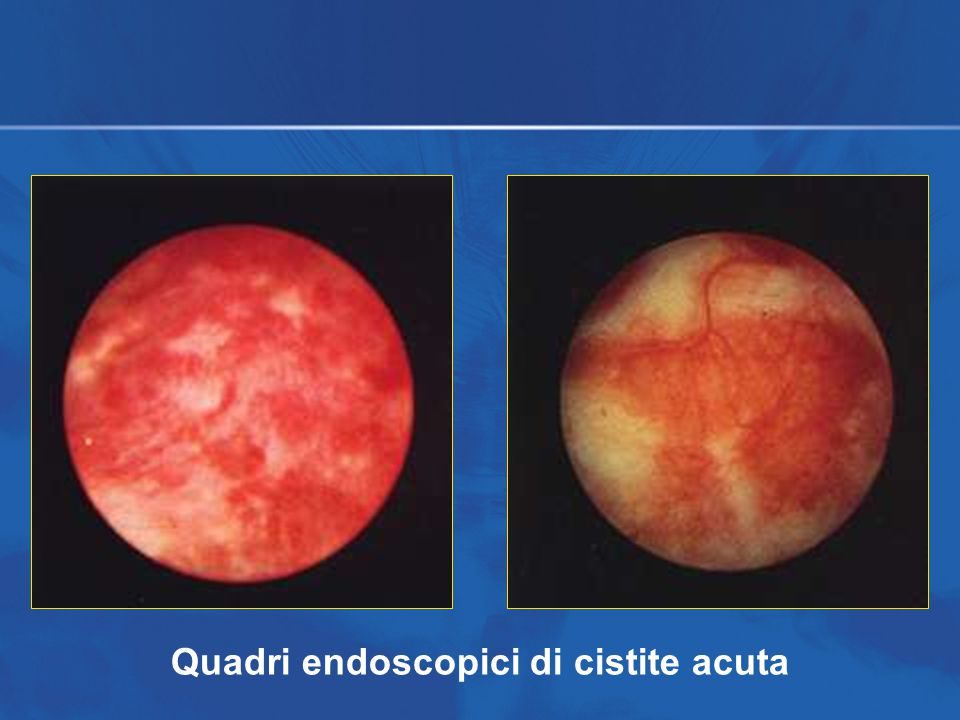 Quadri endoscopici di cistite acuta