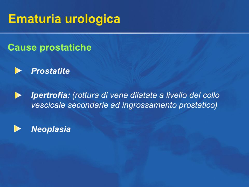 Ematuria urologica Cause prostatiche Prostatite