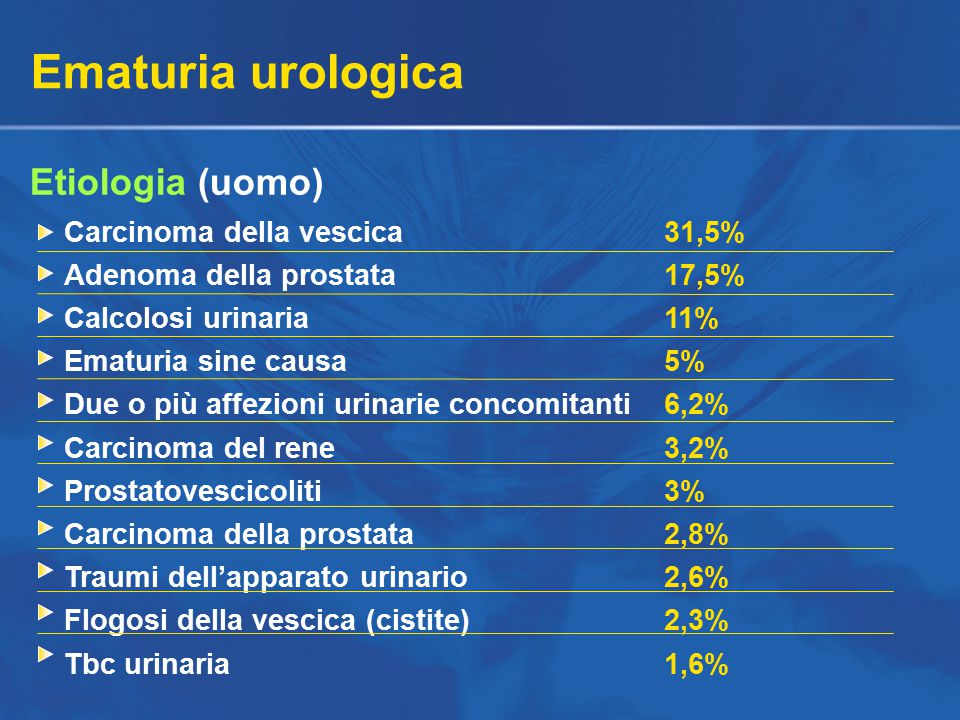 Ematuria urologica Etiologia (uomo) Carcinoma della vescica 31,5%