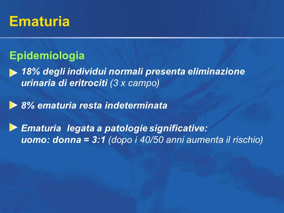 Ematuria Epidemiologia