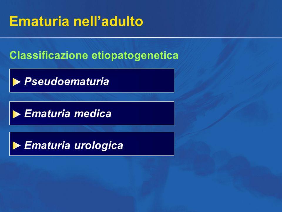 Ematuria nell'adulto Classificazione etiopatogenetica Pseudoematuria