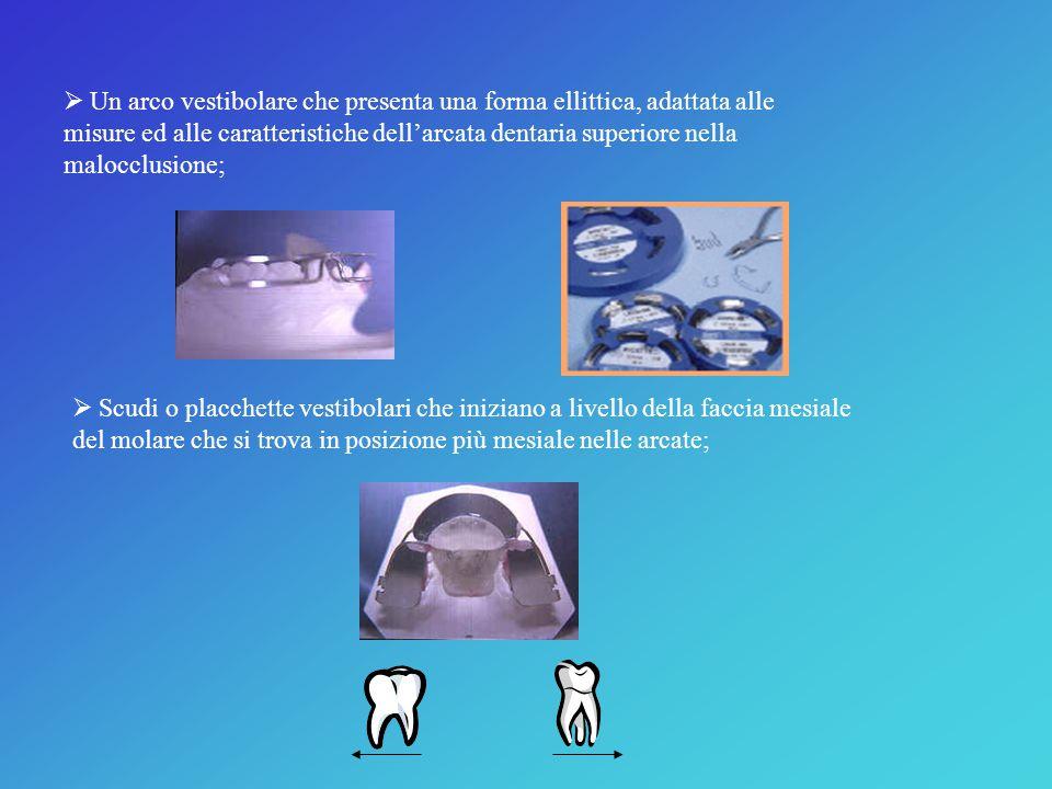 Un arco vestibolare che presenta una forma ellittica, adattata alle misure ed alle caratteristiche dell'arcata dentaria superiore nella malocclusione;