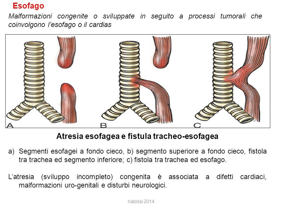 Atresia esofagea e fistula tracheo-esofagea