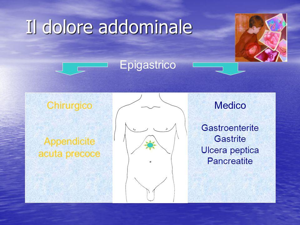 Il dolore addominale Epigastrico Chirurgico Appendicite acuta precoce