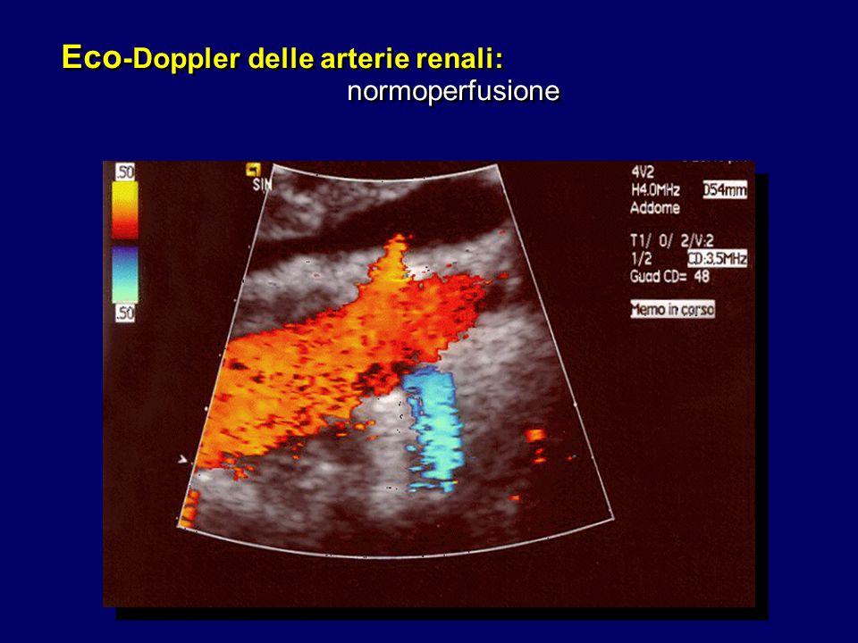 Eco-Doppler delle arterie renali: