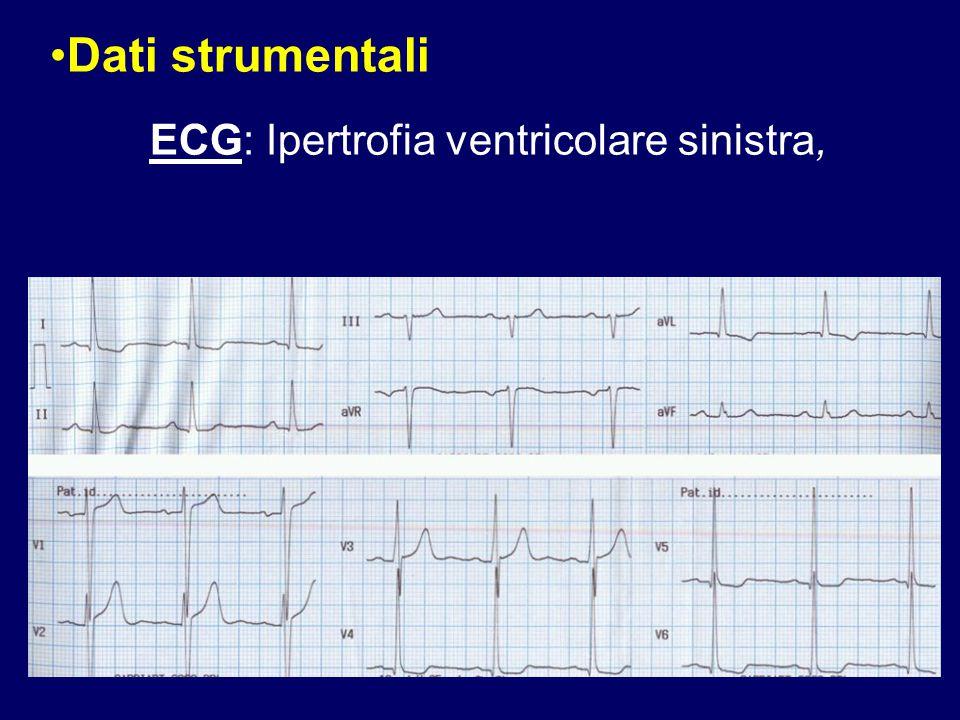 Dati strumentali ECG: Ipertrofia ventricolare sinistra, 72