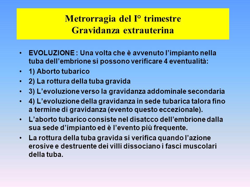 Metrorragia del I° trimestre Gravidanza extrauterina
