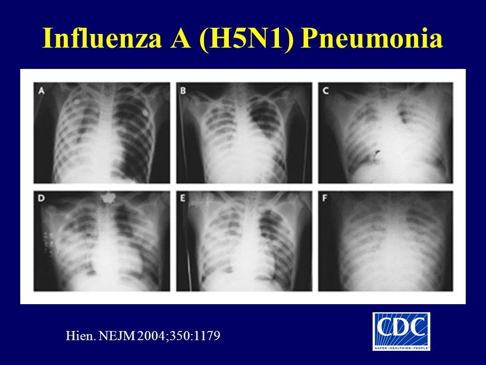 Influenza A (H5N1) Pneumonia