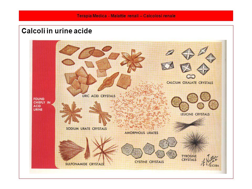 Terapia Medica - Malattie renali – Calcolosi renale