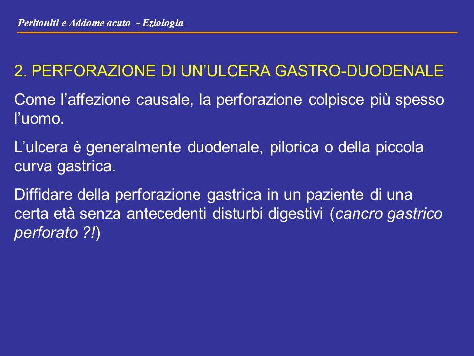 2. PERFORAZIONE DI UN'ULCERA GASTRO-DUODENALE