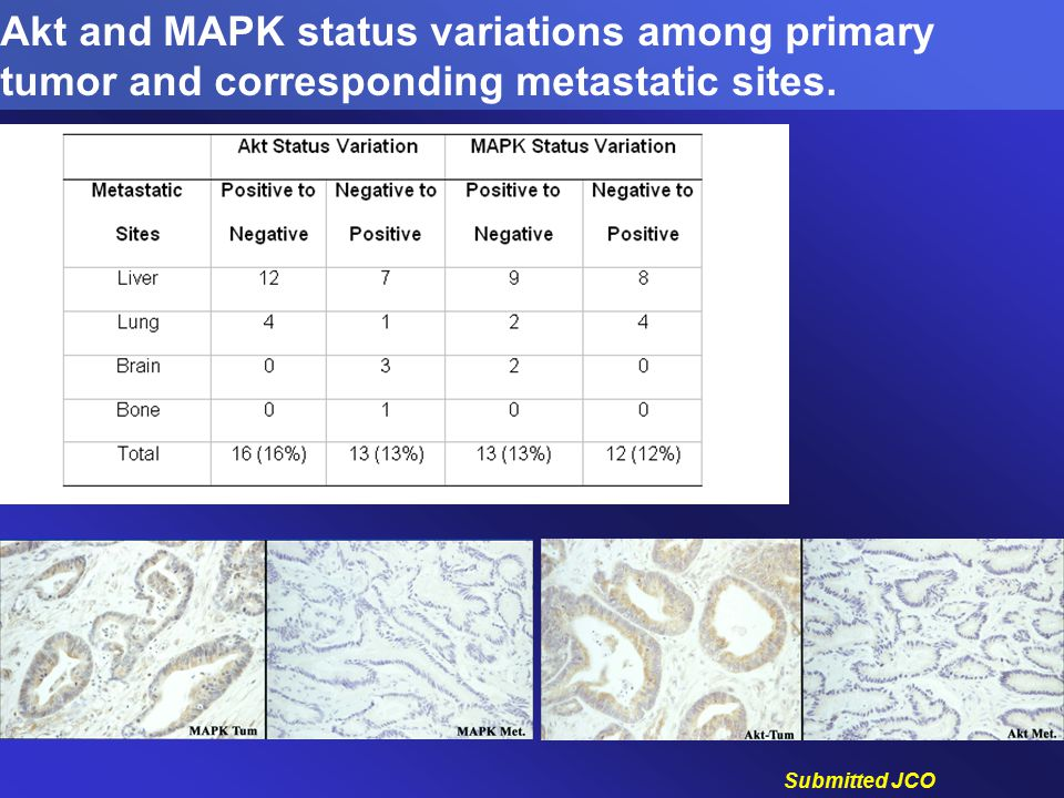 Akt and MAPK status variations among primary tumor and corresponding metastatic sites.