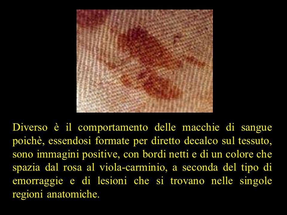 Diverso è il comportamento delle macchie di sangue poichè, essendosi formate per diretto decalco sul tessuto, sono immagini positive, con bordi netti e di un colore che spazia dal rosa al viola-carminio, a seconda del tipo di emorraggie e di lesioni che si trovano nelle singole regioni anatomiche.