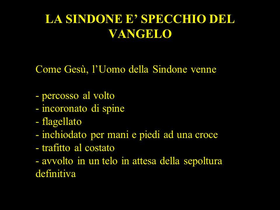 LA SINDONE E' SPECCHIO DEL VANGELO