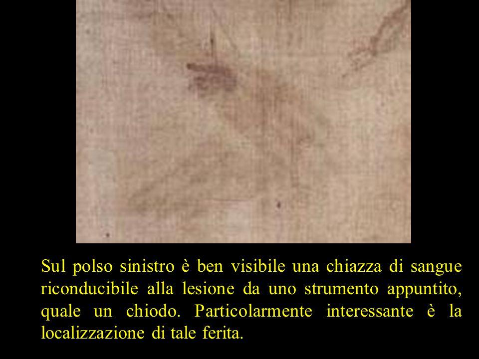 Sul polso sinistro è ben visibile una chiazza di sangue riconducibile alla lesione da uno strumento appuntito, quale un chiodo.
