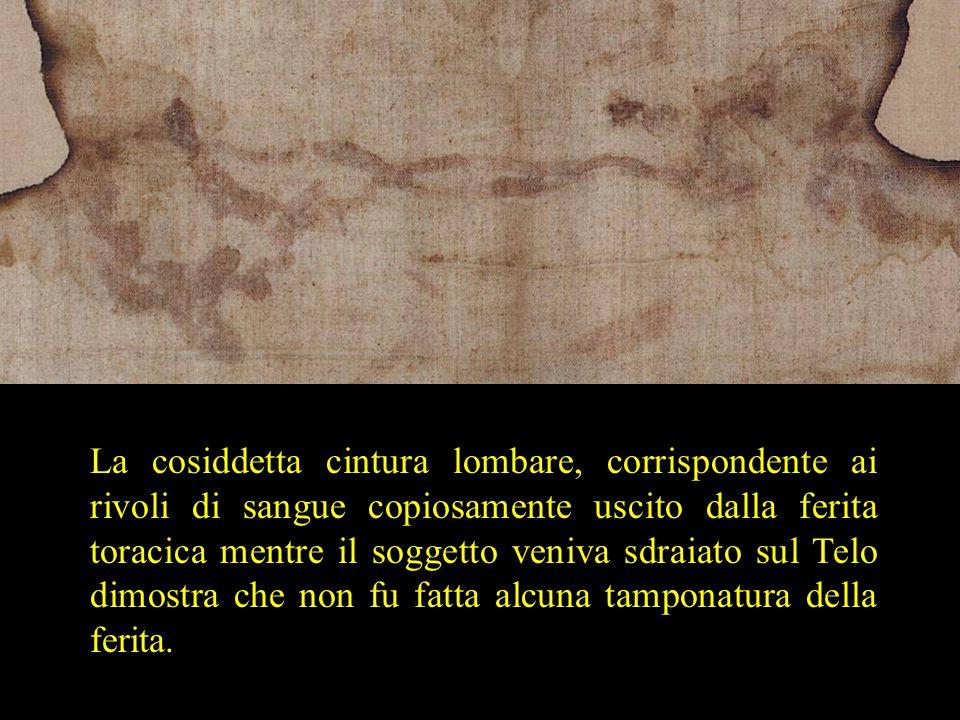 La cosiddetta cintura lombare, corrispondente ai rivoli di sangue copiosamente uscito dalla ferita toracica mentre il soggetto veniva sdraiato sul Telo dimostra che non fu fatta alcuna tamponatura della ferita.