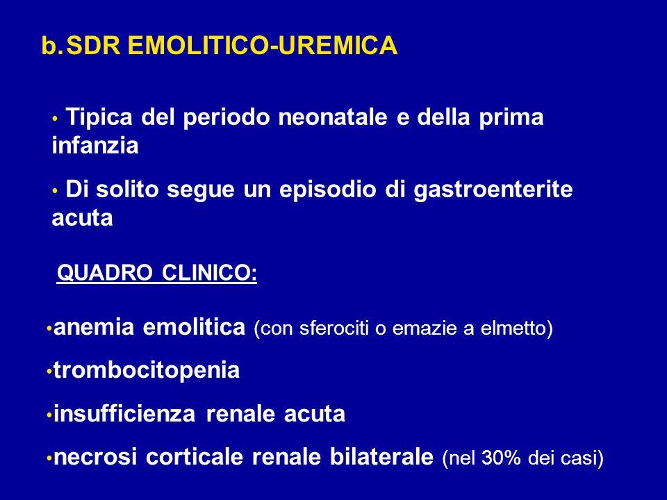 SDR EMOLITICO-UREMICA