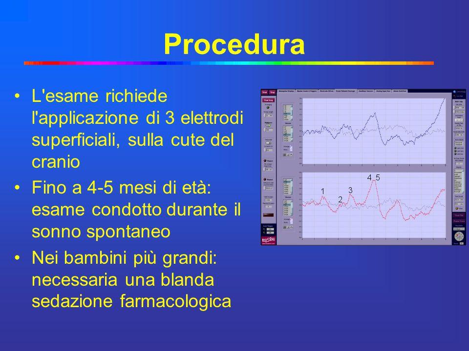 Procedura L esame richiede l applicazione di 3 elettrodi superficiali, sulla cute del cranio.