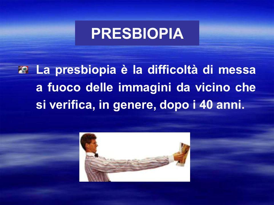 PRESBIOPIA La presbiopia è la difficoltà di messa a fuoco delle immagini da vicino che si verifica, in genere, dopo i 40 anni.