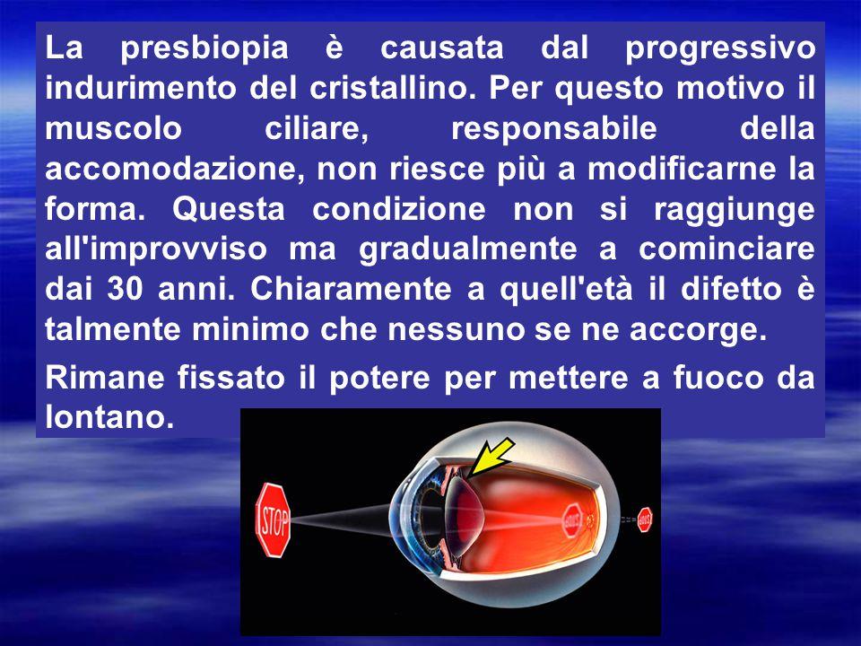 La presbiopia è causata dal progressivo indurimento del cristallino