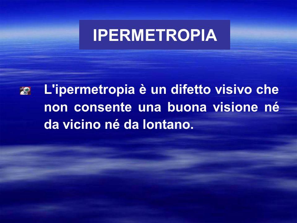 IPERMETROPIA L ipermetropia è un difetto visivo che non consente una buona visione né da vicino né da lontano.