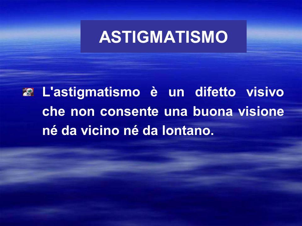 ASTIGMATISMO L astigmatismo è un difetto visivo che non consente una buona visione né da vicino né da lontano.