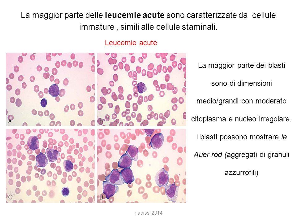 La maggior parte delle leucemie acute sono caratterizzate da cellule immature , simili alle cellule staminali.