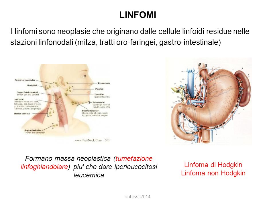 LINFOMI