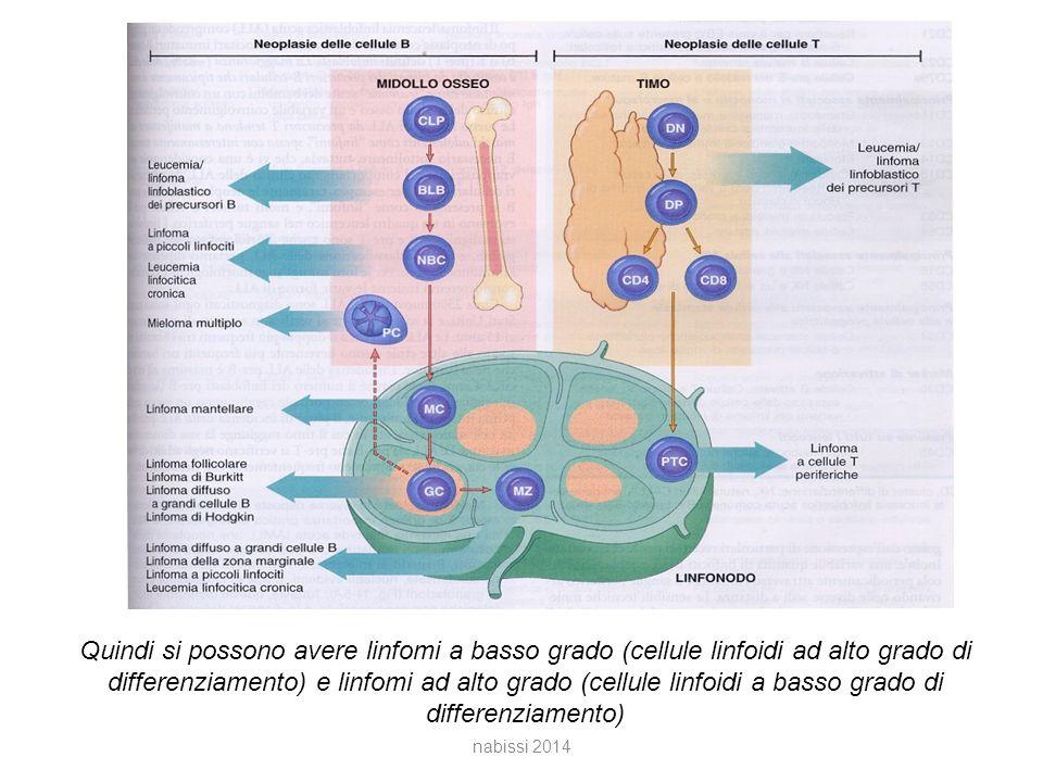 Quindi si possono avere linfomi a basso grado (cellule linfoidi ad alto grado di differenziamento) e linfomi ad alto grado (cellule linfoidi a basso grado di differenziamento)