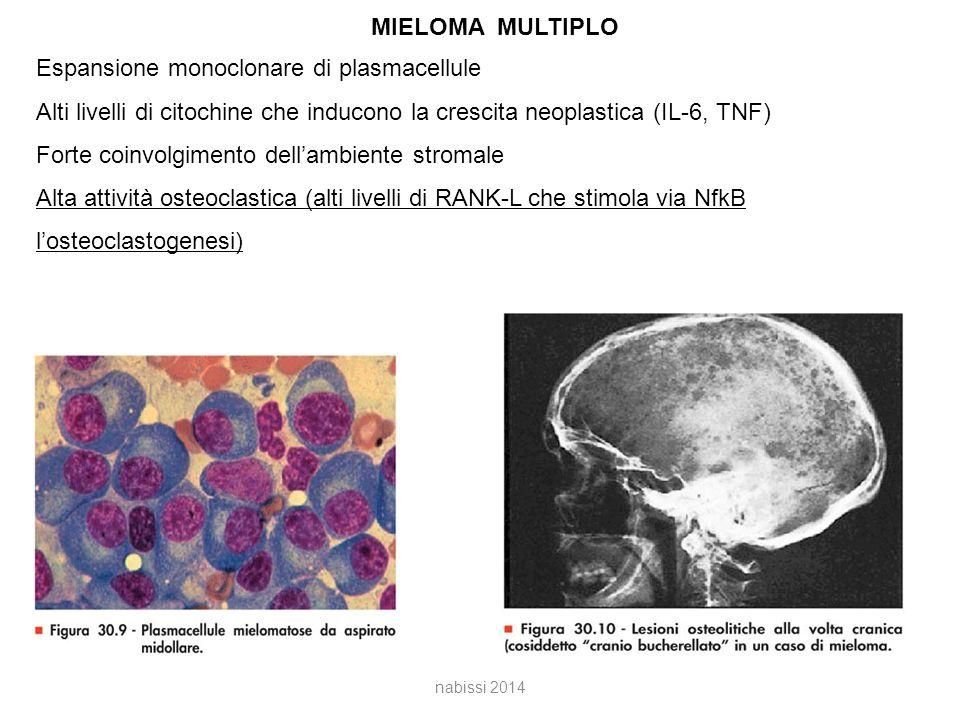 Espansione monoclonare di plasmacellule