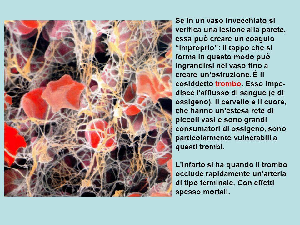 Se in un vaso invecchiato si verifica una lesione alla parete, essa può creare un coagulo improprio : il tappo che si forma in questo modo può ingrandirsi nel vaso fino a creare un ostruzione. È il cosiddetto trombo. Esso impe-disce l afflusso di sangue (e di ossigeno). Il cervello e il cuore, che hanno un estesa rete di piccoli vasi e sono grandi consumatori di ossigeno, sono particolarmente vulnerabili a questi trombi.