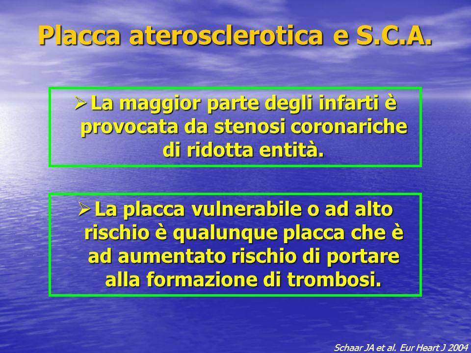 Placca aterosclerotica e S.C.A.