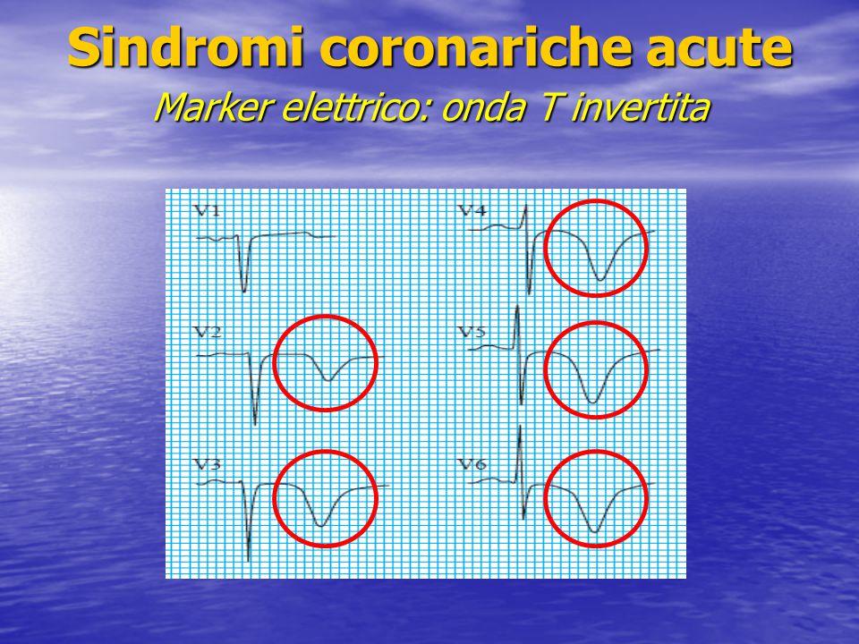 Sindromi coronariche acute