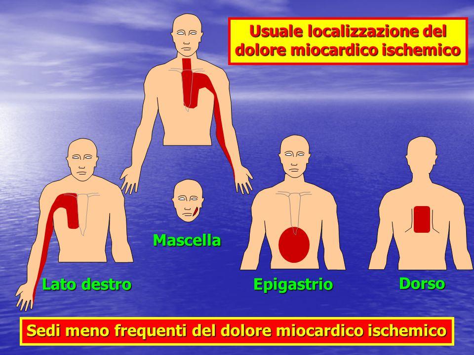 Usuale localizzazione del dolore miocardico ischemico
