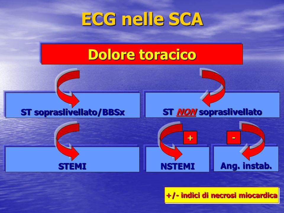 ECG nelle SCA Dolore toracico ST sopraslivellato/BBSx