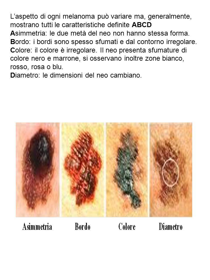 L'aspetto di ogni melanoma può variare ma, generalmente, mostrano tutti le caratteristiche definite ABCD