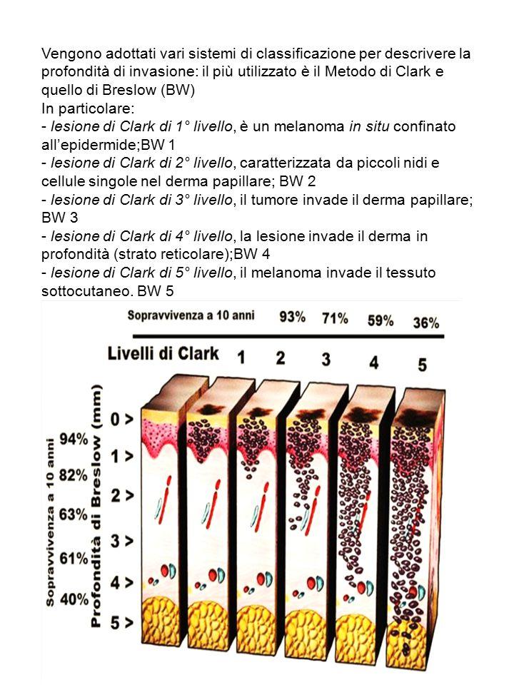 Vengono adottati vari sistemi di classificazione per descrivere la profondità di invasione: il più utilizzato è il Metodo di Clark e quello di Breslow (BW)