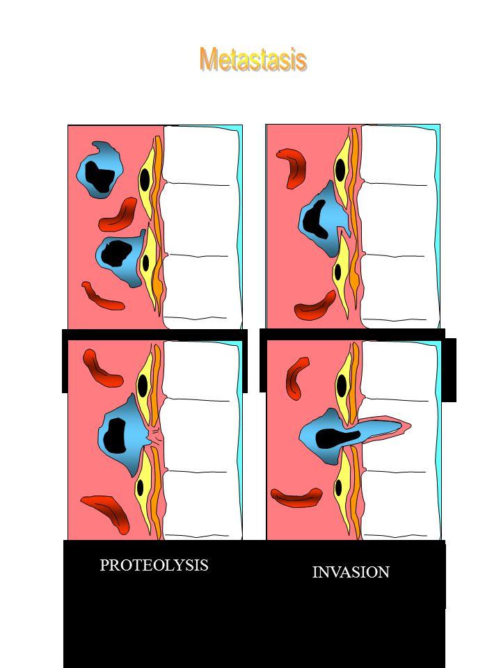 Metastasis ADHESION E.C. ADHESION B.M. PROTEOLYSIS INVASION