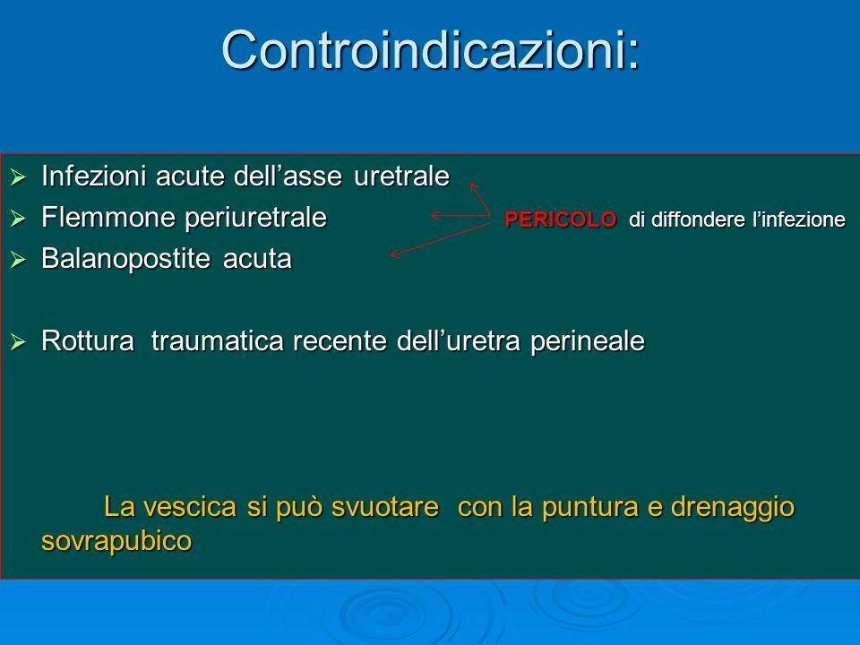 Controindicazioni: Infezioni acute dell'asse uretrale