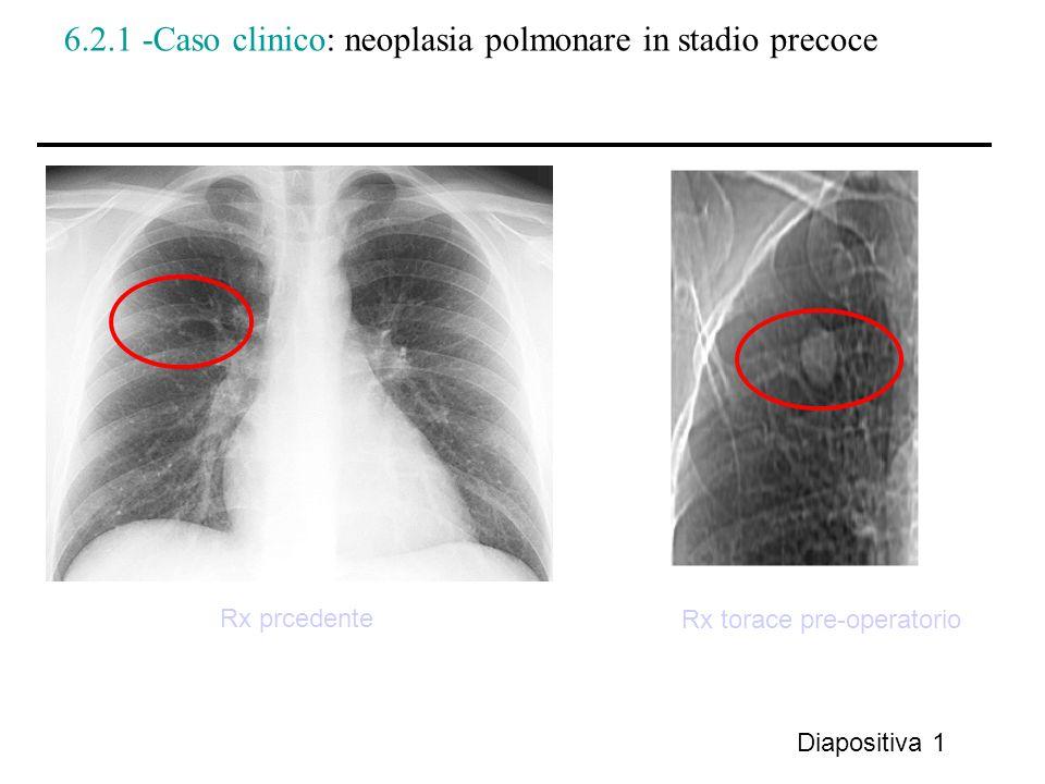 6.2.1 -Caso clinico: neoplasia polmonare in stadio precoce