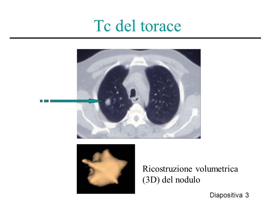 Tc del torace Ricostruzione volumetrica (3D) del nodulo Diapositiva 3
