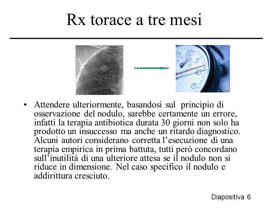 Rx torace a tre mesi