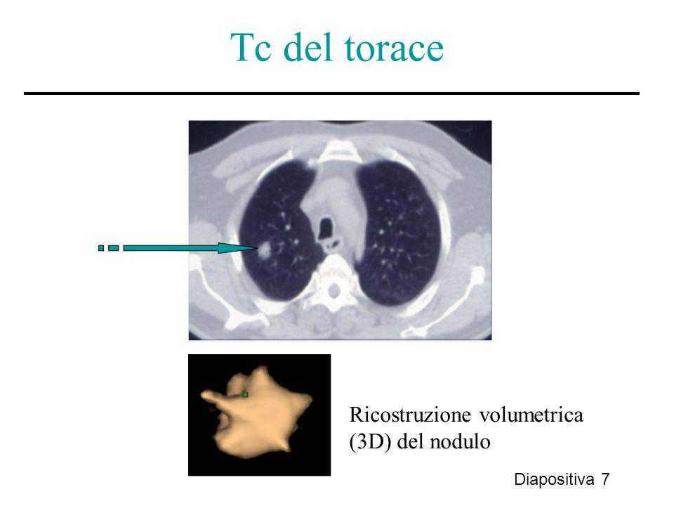 Tc del torace Ricostruzione volumetrica (3D) del nodulo Diapositiva 7