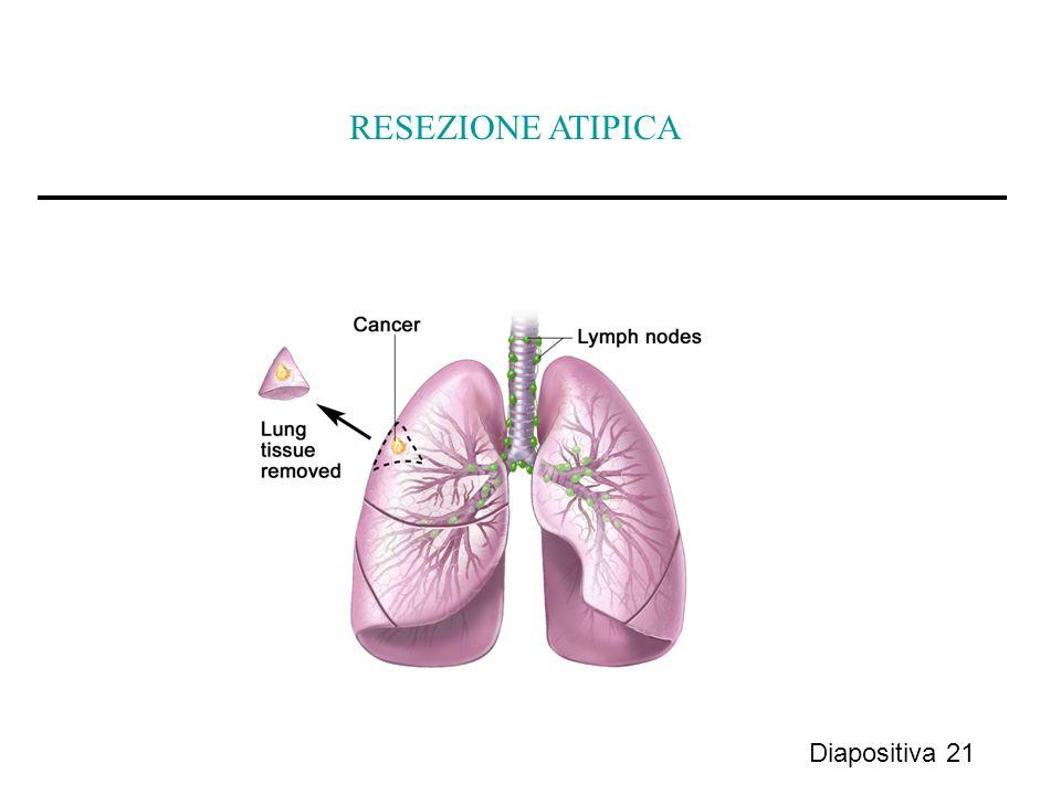 RESEZIONE ATIPICA Diapositiva 21