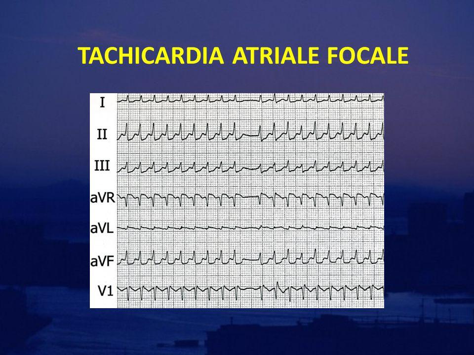 TACHICARDIA ATRIALE FOCALE