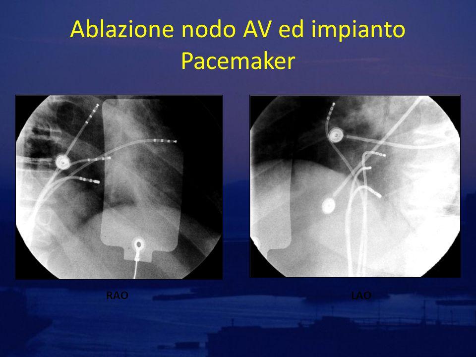Ablazione nodo AV ed impianto Pacemaker